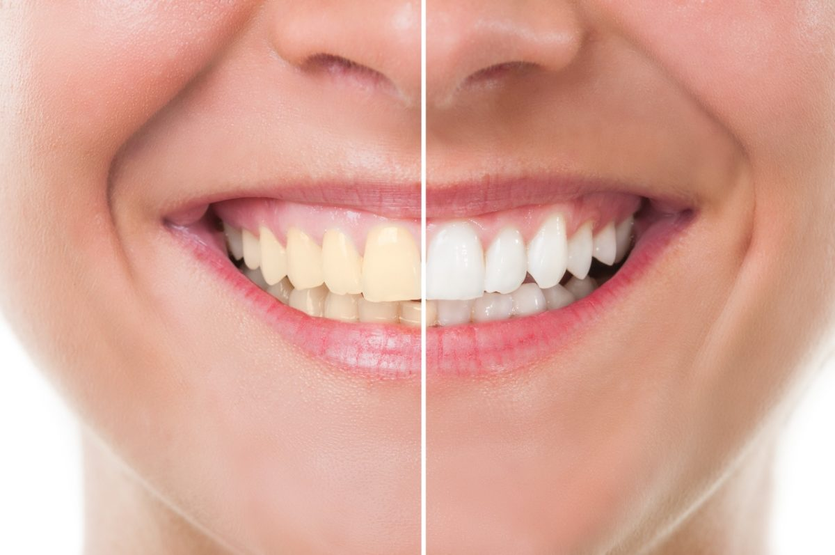 teeth-whitening-1200x797.jpg